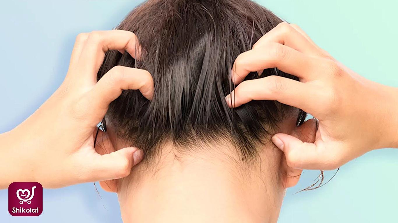 خارش پوست سر و راه های درمان و پیشگیری از آن