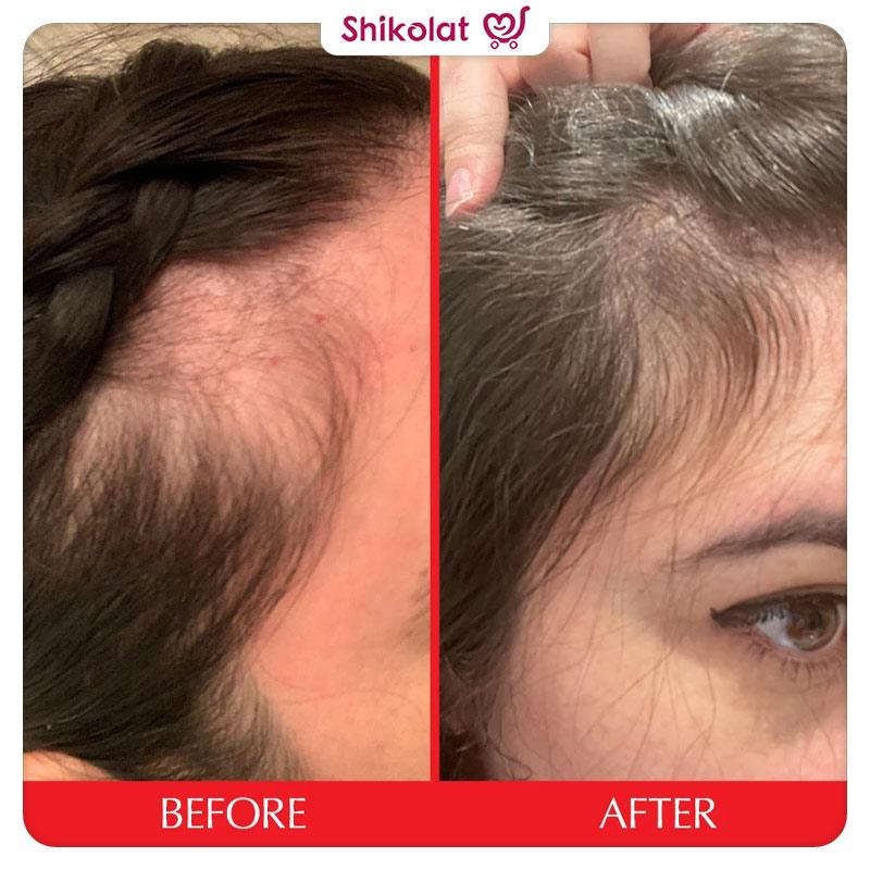 قرص پاستیلی تقویت کننده مو هیرتامین Hairtamin Gummy Stars